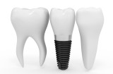 Implant Dentistry at Downtown Dental Nashville: Frequently Asked Questions