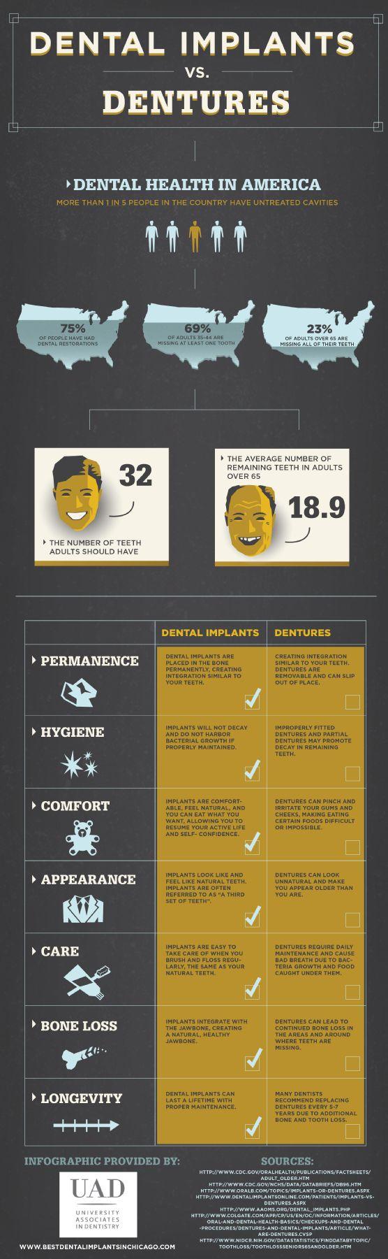 implant infographic