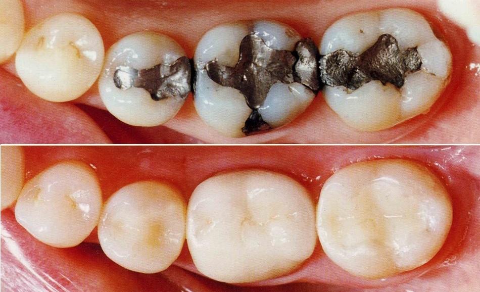 Amalgam v/s Composite Fillngs